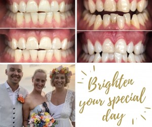 Brighten your special day