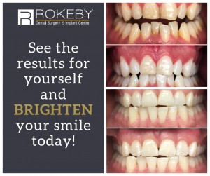See the results for yourself and BRIGHTEN your smile today!